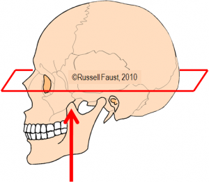 CT-Imaging-Sinuses-Axial-Plane-300x262