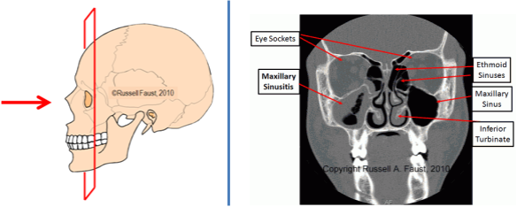 CT-Imaging-Sinuses-Coronal-Plane-Combo