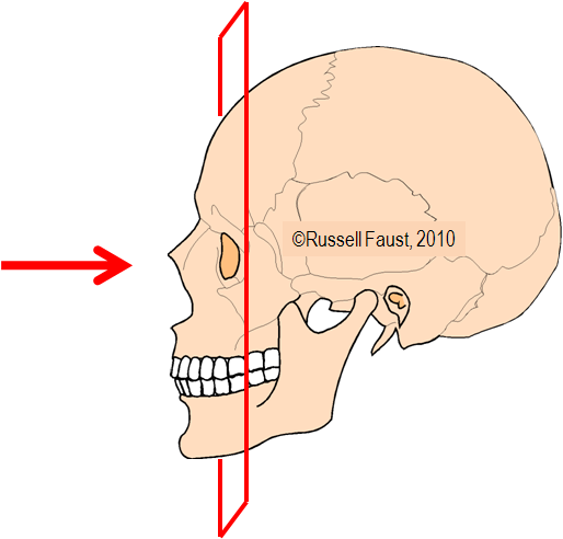 CT-Imaging-Sinuses-Coronal-Plane